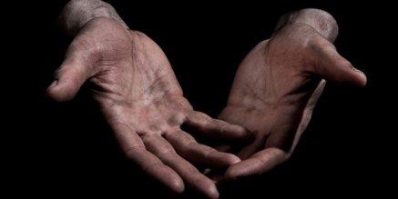 callus-hands